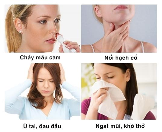 Một số dấu hiệu ung thư vòm họng mà người bệnh không nên chủ quan.