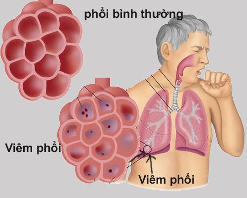 Biến chứng viêm phổi đáng sợ như thế nào?