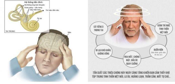 Rối loạn tiền đình là bệnh dễ gặp ở người già.