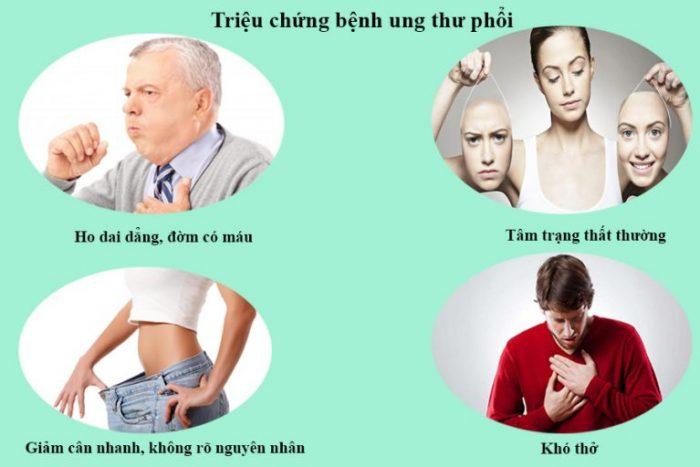 Bệnh ung thư phổi có nhiều triệu chứng khác nhau