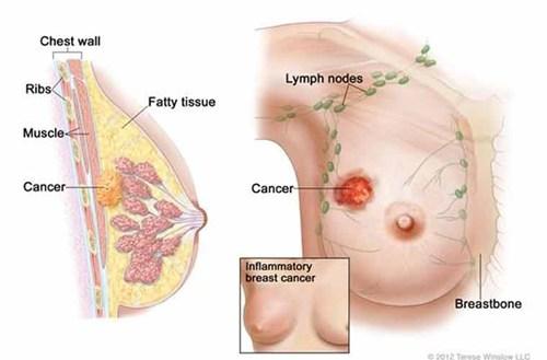 Nấm lim xanh Quảng Nam chữa khỏi bệnh ung thư vú?