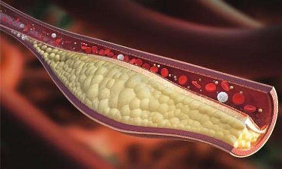 Máu nhiễm mỡ có nguy hiểm không và cách điều trị ?
