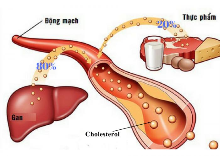 Máu nhiễm mỡ dẫn đến các bệnh về gan, tim mạch...