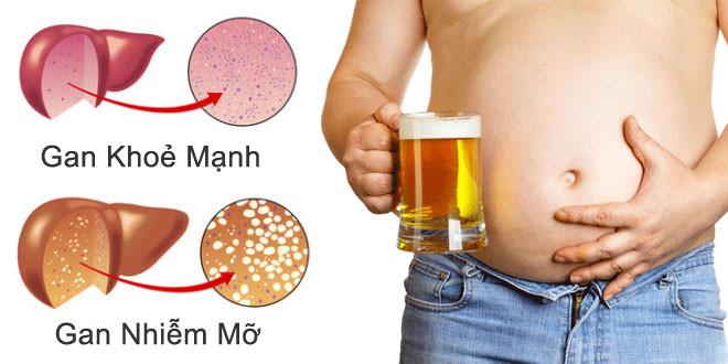 chế độ ăn cho người gan nhiễm mỡ
