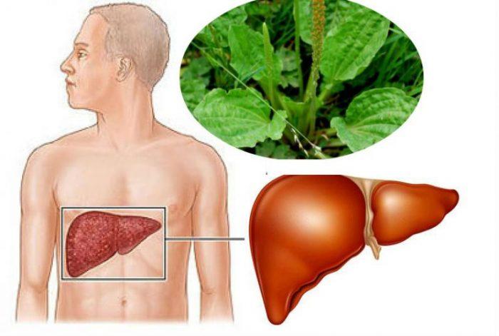 Bài thuốc điều trị xơ gan bằng thuốc nam với cây mã đề