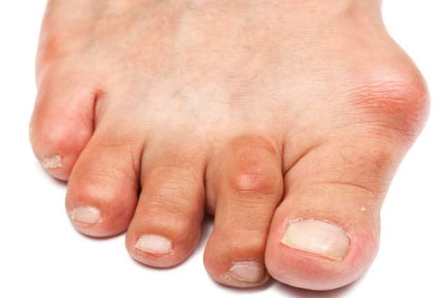 biểu hiện của bệnh gout