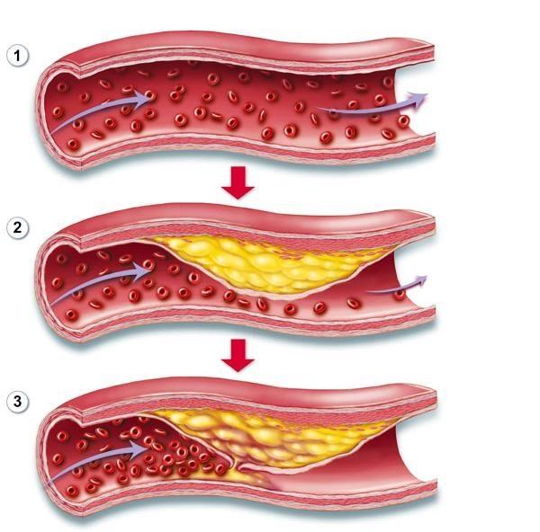 Làm thế nào để điều trị bệnh mỡ máu cao hiệu quả?