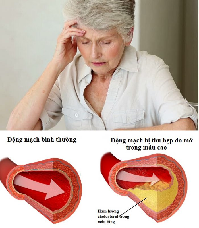 Điều trị mỡ máu cao trở nên khó khăn nếu người bệnh không kiên trì, không điều chỉnh chế độ sinh hoạt hợp lý.