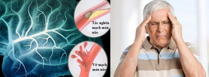 Phòng tai biến mạch máu não là việc mà người cao tuổi và những nhóm có nguy cơ khác cần quan tâm.