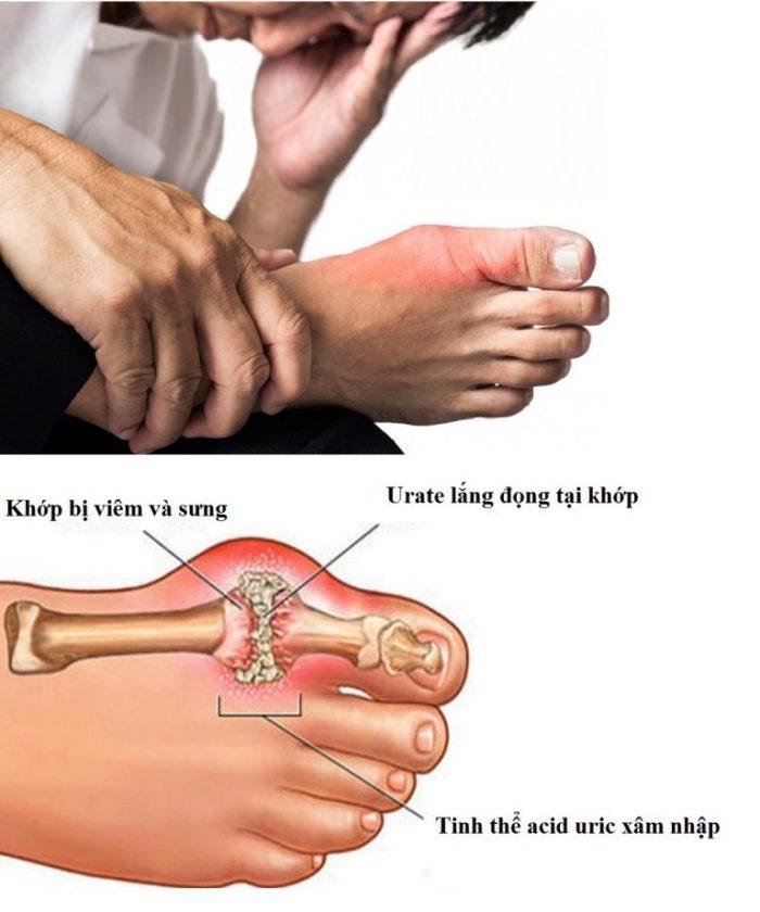 Triệu chứng của bệnh gout nếu được nhận biết sớm, điều trị đúng cách sẽ không đáng lo ngại.