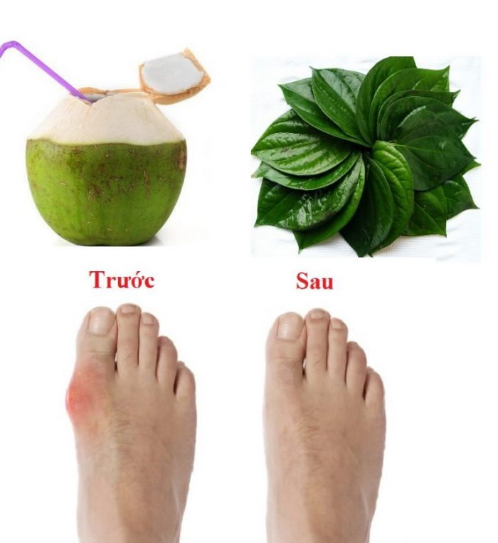 Không chỉ giúp điều trị triệu chứng của bệnh gout, bài thuốc lá trầu kết hợp với nước dừa còn giúp bệnh nhanh khỏi, hạn chế tái phát.