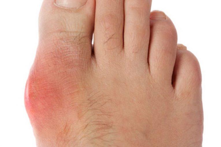 Điểm danh những triệu chứng của bệnh gout bạn nên biết