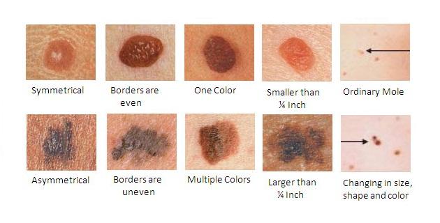 Hình ảnh phóng to của các loại ung thư da