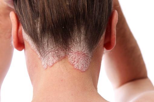 Điều trị ung thư da đầu với nấm lim xanh