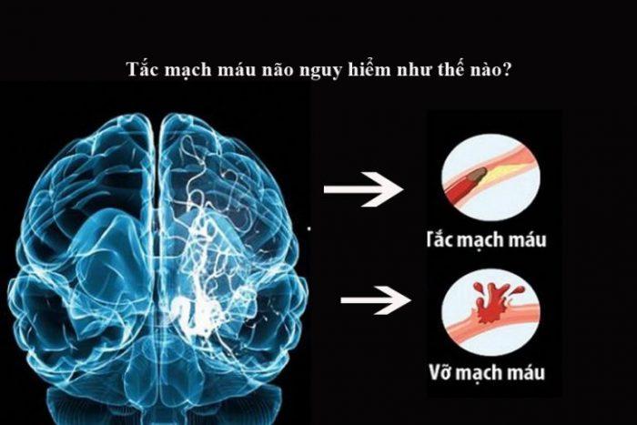 Tai biến mạch máu não là bệnh vô cùng nguy hiểm