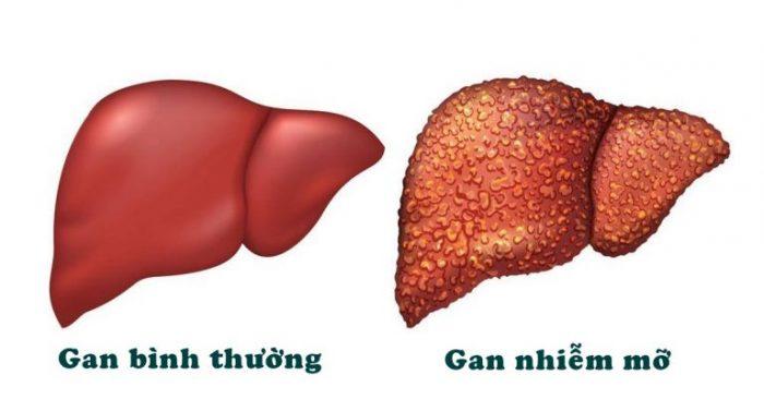 Dấu hiệu gan nhiễm mỡ nhìn từ biểu hiện trên lá gan