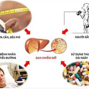 Cảnh báo: thuốc chữa bệnh có thể là nguyên nhân gan nhiễm mỡ