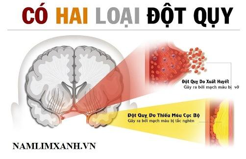 Nguyên nhân gây tai biến mạch máu não