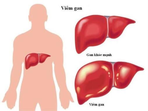 Người bị viêm gan nên kiêng gì?