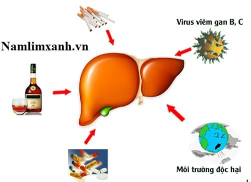 Những nguyên nhân gây xơ gan phổ biến