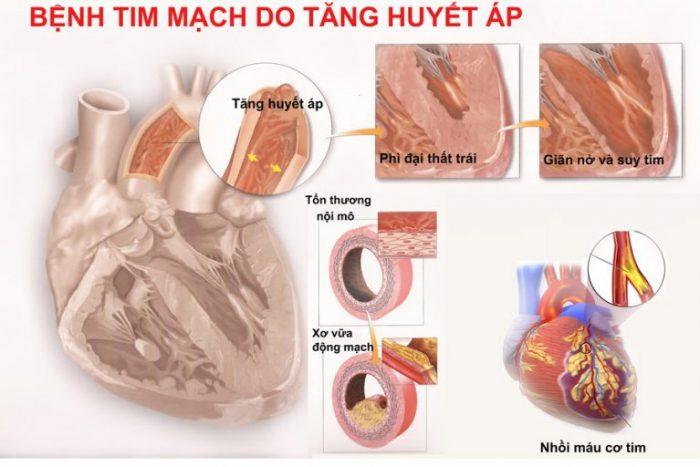 Biến chứng bệnh tăng huyết áp ở tim mạch.