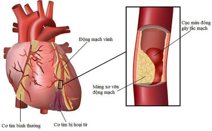 Chỉ số mỡ máu cao là nguy cơ gây ra các bệnh về tim mạch.