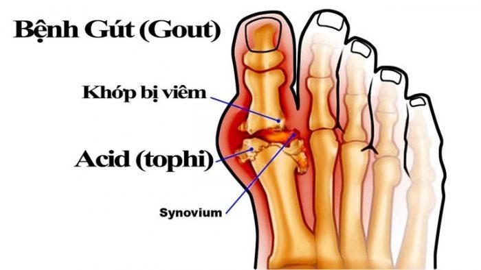 Cơn đau bệnh gout thường khởi phát từ ngón chân cái với tỷ lệ nam giới mắc bệnh cao hơn