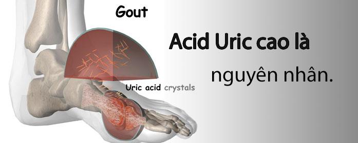 Acid uric cao là nguyên nhân trực tiếp gây nên đau đớn khớp ở người bệnh gout