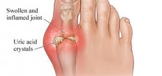 Cần điều trị bệnh gout kịp thời để chữa khỏi bệnh
