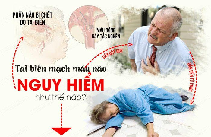 Bệnh tai biến mạch máu não vô cùng nguy hiểm