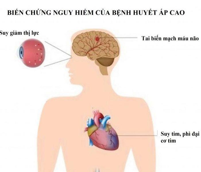 Biến chứng của bệnh huyết áp cao khiến động mạch dễ bị tắc nghẽn, vỡ dẫn tới suy giảm thị lực, tai biến não, suy tim, thận...
