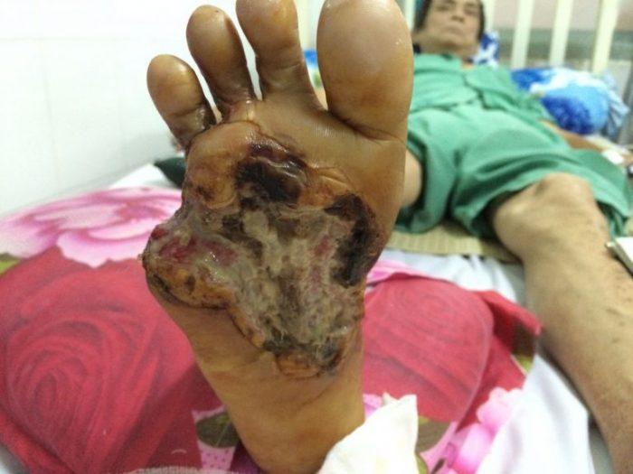 Loét bàn chân là một biến chứng tiểu đường thường gặp ở người bệnh.