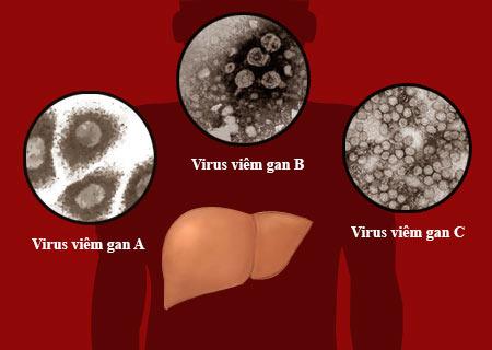 """Bệnh viêm gan được xem như """"sát thủ thầm lặng"""""""