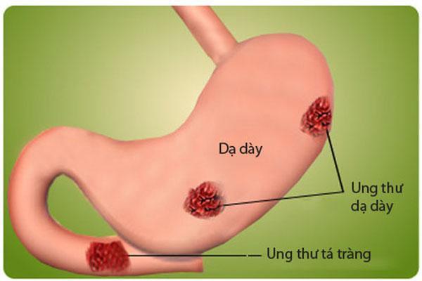 Nguyên nhân gây ung thư dạ dày