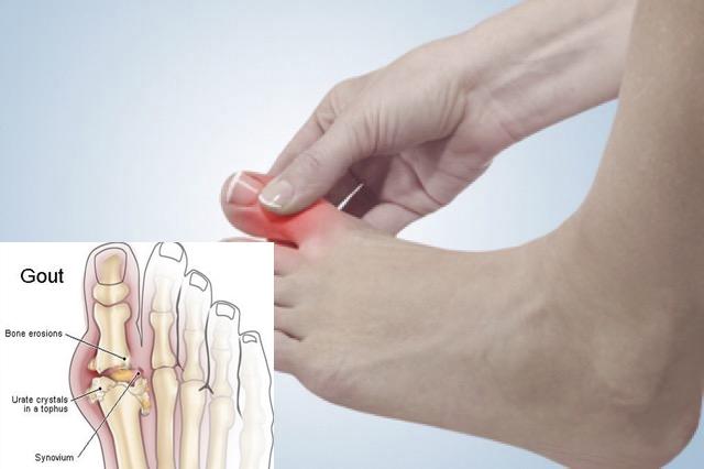 Đau ngón chân cái là một triệu chứng của bệnh gout