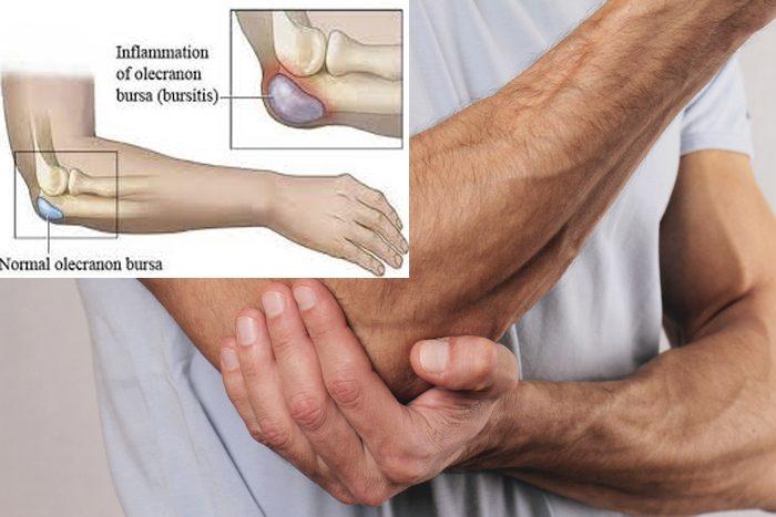 Sưng túi dịch đệm là một triệu chứng của bệnh gout