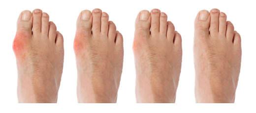 Những triệu chứng thường gặp của bệnh gout