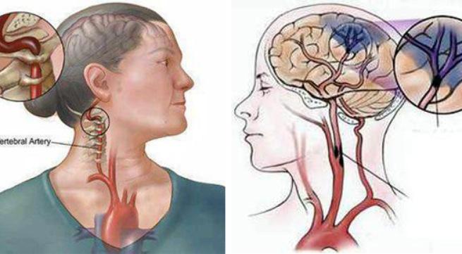 Bệnh tai biến mạch máu não là căn bệnh nguy hiểm