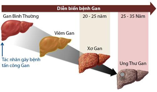 Biến chứng viêm gan C gây ra suy gan, xơ gan, ung thư gan.