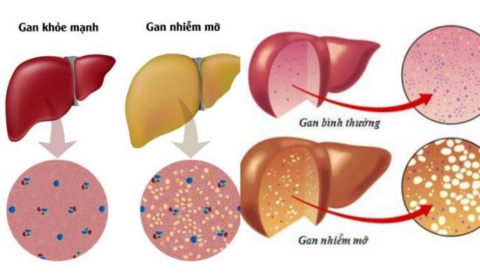 Bệnh thừa cân béo phì gây ra bệnh gan nhiễm mỡ.