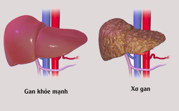 Xơ gan là biến chứng của bệnh gan mãn tính