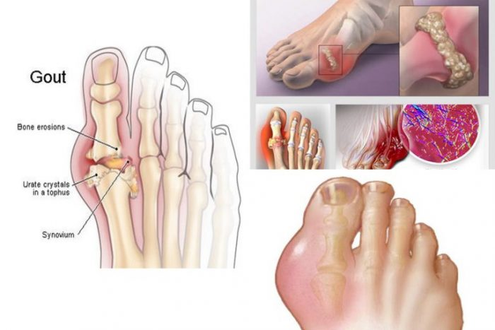Cơ thể tích tụ quá nhiều axit uric là nguyên nhân gây nên bệnh gout