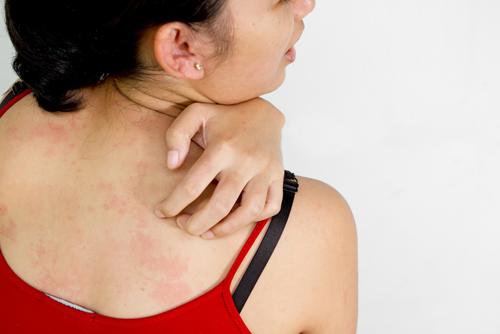 Người hay bị dị ứng, hen suyễn nên chú ý phòng tránh bệnh ung thư hơn.