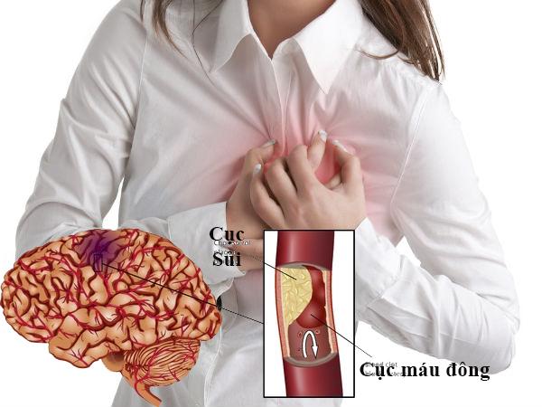 Bệnh tim là một nguyên nhân tai biến mạch máu não