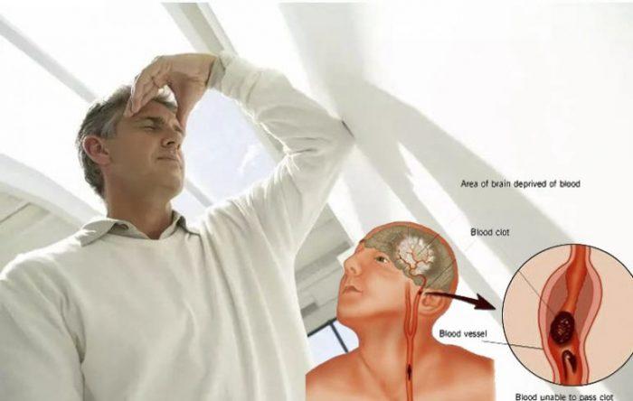 Tai biến mạch máu não là do máu lên não bị tắc