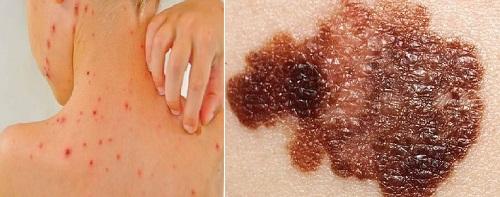Biểu hiện của bệnh ung thư da