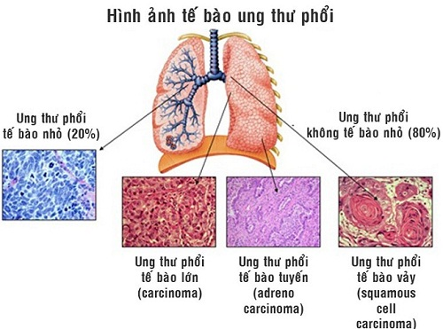 Hình ảnh ung thư phổi qua các thời kì