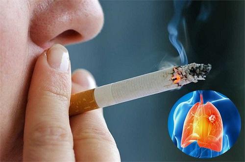 Hút thuốc lá là một trong những nguyên nhân chủ yếu dẫn đến ung thư phổi.