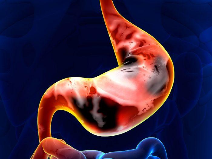 Ung thư dạ dày có chữa được không? Cách điều trị ung thư hiệu quả