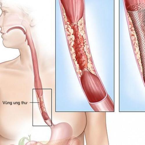 Ung thư thực quản và những dấu hiệu, cách điều trị bệnh hiệu quả nhất